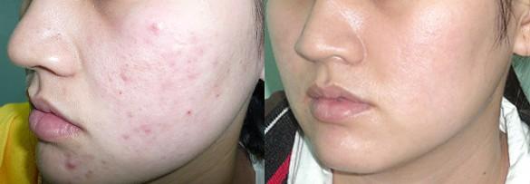 Hình ảnh trước và sau liệu trình trị liệu đẩy cồi mụn với giải pháp kem trị mụn Bella Skin.