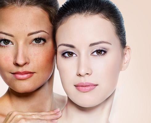 Kem trị nám, dưỡng trắng da ban ngày Bella Skin - Crystal skin whitening Day Cream